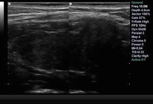 Hashimoto's Ultrasound